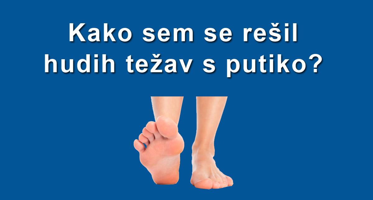 Putika